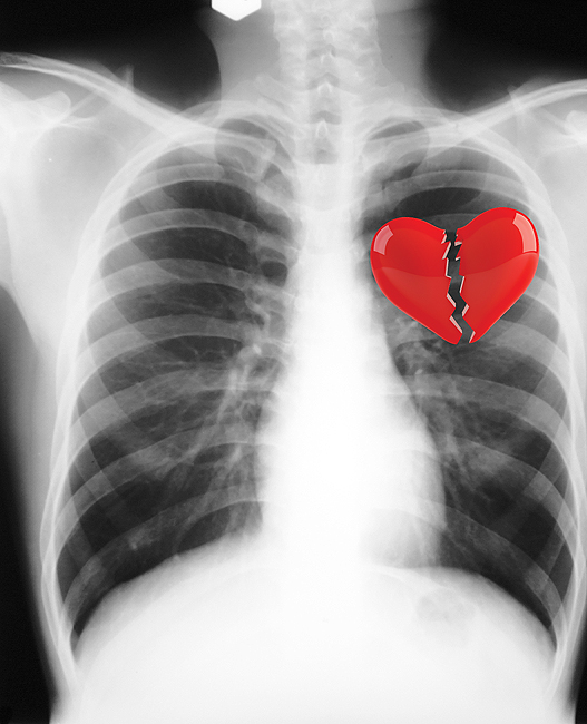 Broken Heart: Can you really suffer from one?, University ...