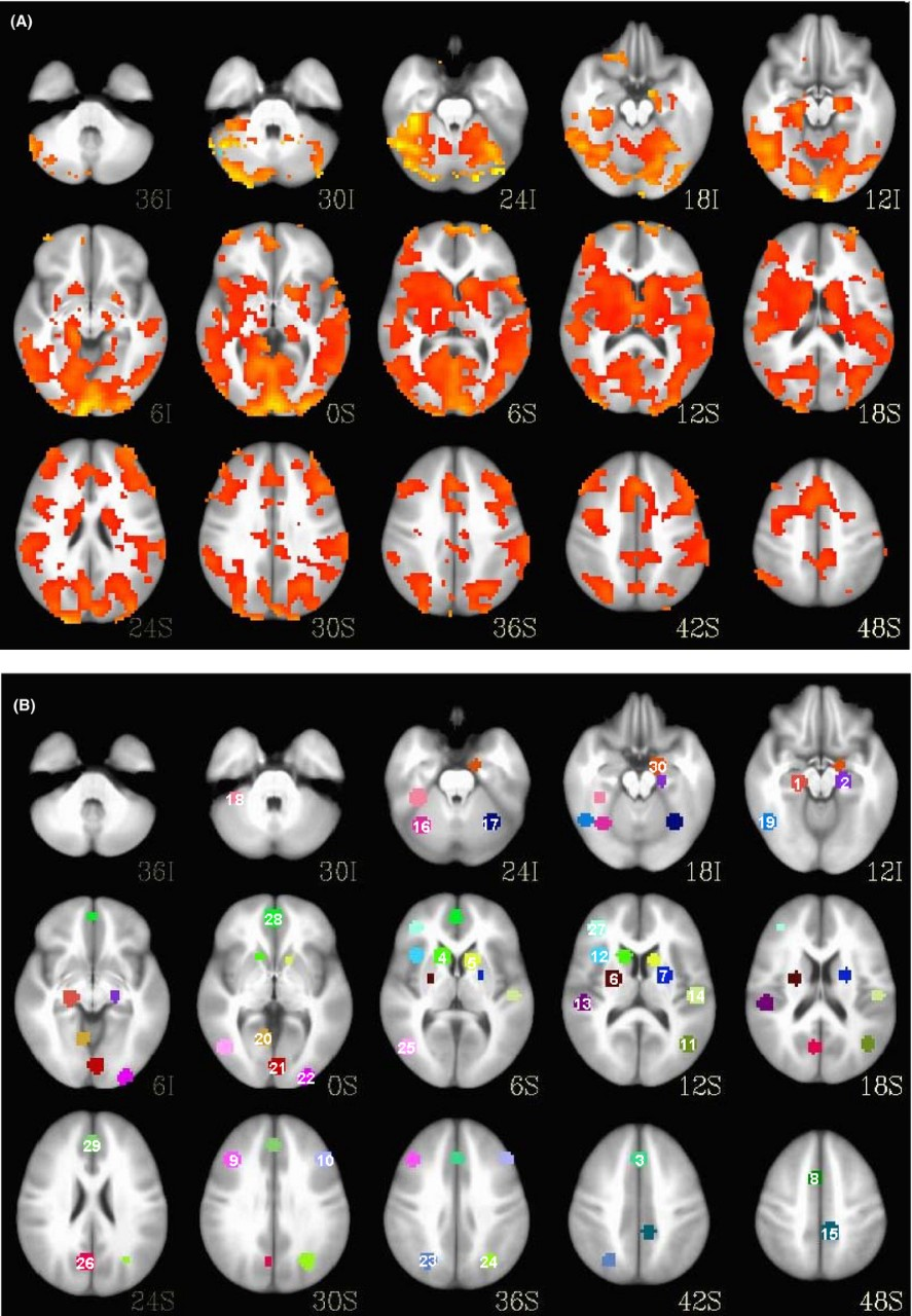 A comparison of brain scans shows the regional activation differences between a bipolar patient, top, and a healthy patient.