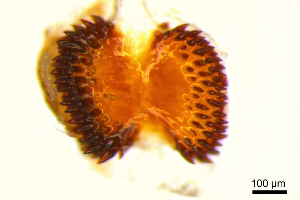 An open tooth-filled structure inside a female butterfly reproductive tract.