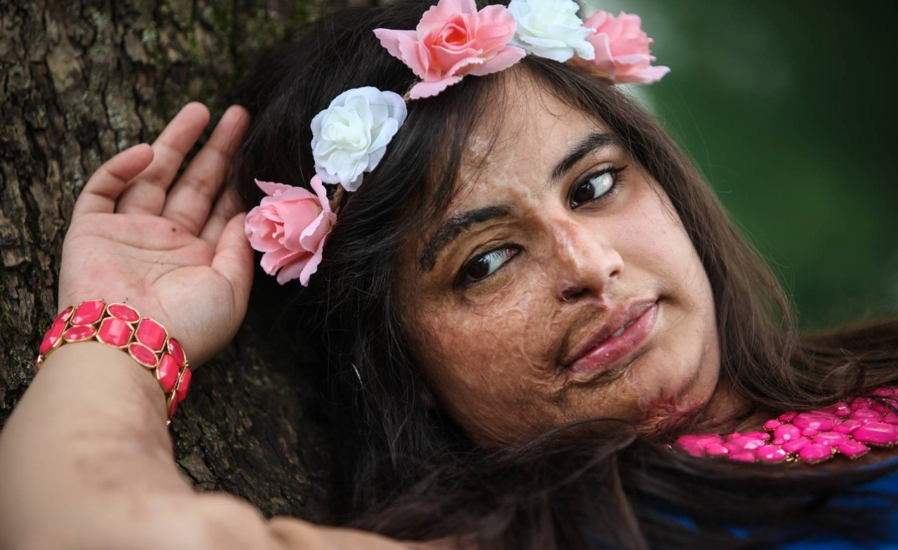 Acid-attack survivor Prerna Gandhi poses for a photo shoot.