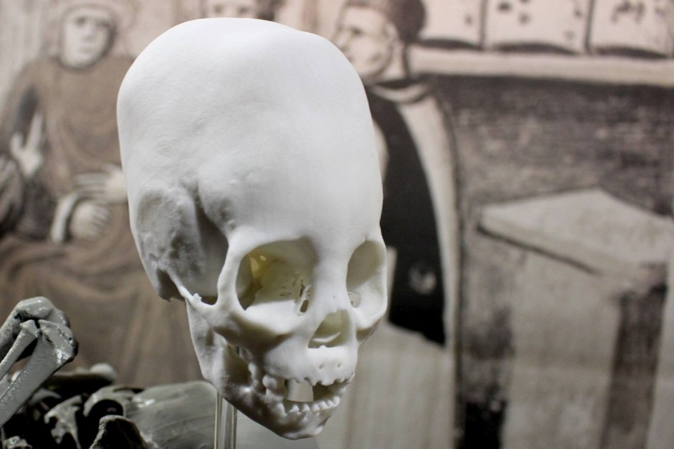 A 3-D printed image of a skull of a 300-year-old mummified Peruvian child.